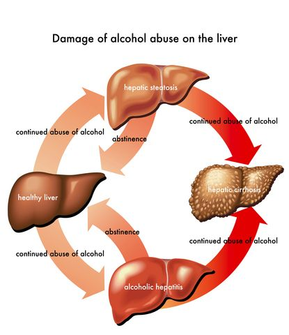 http://liverbasics.com/liver-failure-stages.html The stages of liver failure explained in easy to understand terminology. Learn and understand what is happening in each stage.