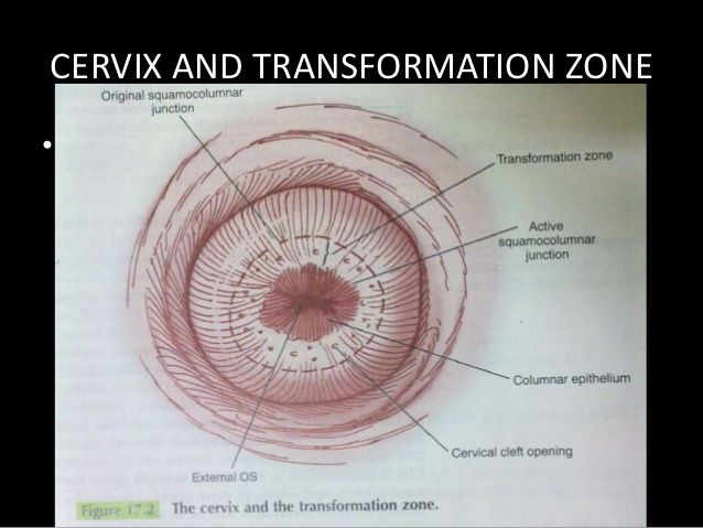 CERVIX AND TRANSFORMATION ZONE• Figure – 17.1 , 17.2 & 17.3