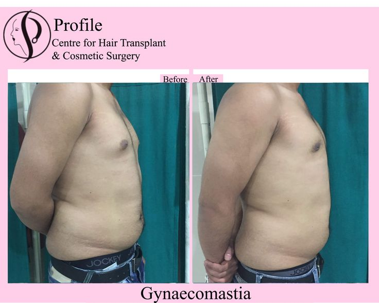 This image shows the post-treatment look of one of our patients'. He took Gynecomastia surgery at our centre. You can also give your chest the desired shape. Visit our website to know more.