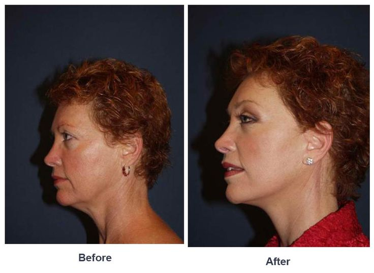Procedures Performed: Endoscopic Brow Lift: Full Brow Lift Eyelid: Lower Lid Blepharoplasty with SOOF Deep Plane Face Minituck Dr. Freeman's Makeovers