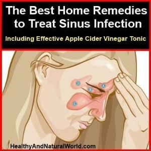 how to treat sinus infection by Dave Warren