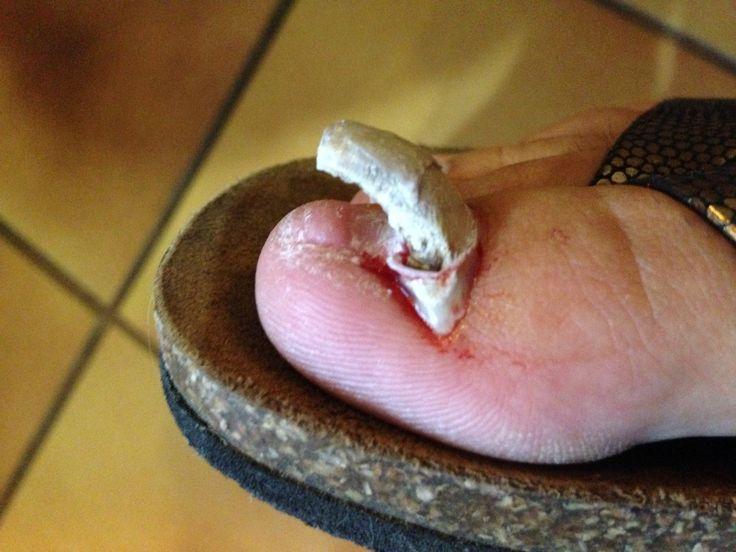 Onychomycose et ongle arraché Une onychomycose (champignon de l'ongle) responsable d'un ongle arraché. La mycose a tellement épaissi l'ongle, que la personne se promenant en tongs est restée accrochée par l'ongle qui s'est détaché et retourné.