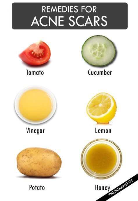 acne scars treatment at home