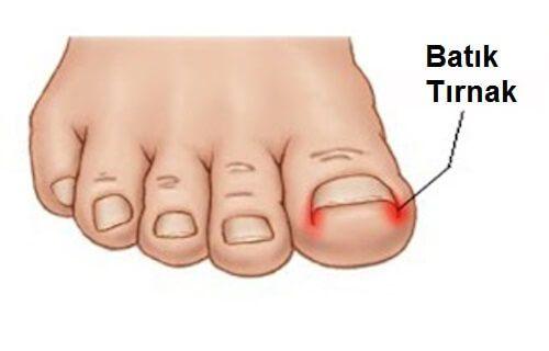 Tırnak batması oldukça yaygın bir sorundur. Bu size bolca rahatsızlık verebilir ve tedavi etmesi karmaşık olabilir, ancak iyi hijyenle ve doğru bakımla batmayı önleyebilirsiniz. Tırnak batması özellikle tırnağa baskı yapan türde ayakkabı kullanımının yaygın olduğu kültürlerde sıkça görülen bir sorundur.