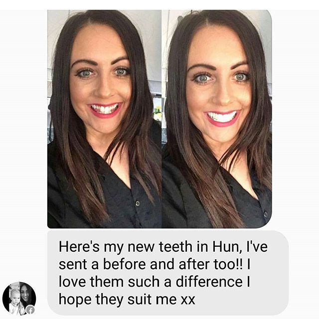 New pearly whites created for our stunning client @vikki.welsh 😃😃😃😃 #cliponveneers #teethwhitening #smile #teethgoals #wedding #prom #pageant #fashion #veneers #snaponsmile