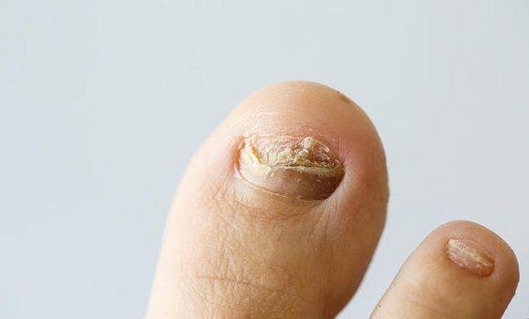 big toe arthritis kenőcs)
