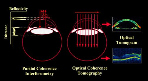 Optical Coherence Tomography | Vision Science and Advanced Retinal Imaging Laboratory