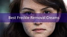 The 5 Best Freckle Removal Creams