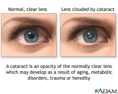 A Comparison Between Healthy Eye And One That Has Developed Cataracts