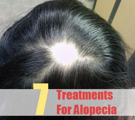 7 Treatments For Alopecia