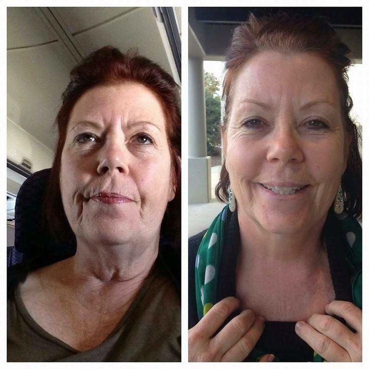 No More Turkey Neck Rodan And Fields Redefine Amp Md