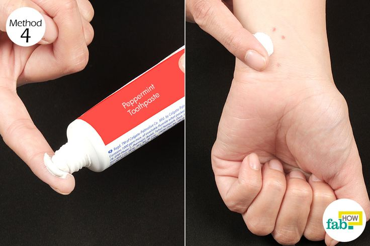peppermint toothpaste to treat mosquito bites