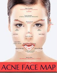 acne face diagram 2006 chevy 2500hd radio wiring image result for botox injection sites nicole s frozen b