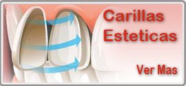 Carillas de porcelana, Centro Odontologico Santa Barbara, Valencia, Venezuela