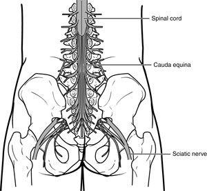 Cauda Equina Syndrome-OrthoInfo - AAOS