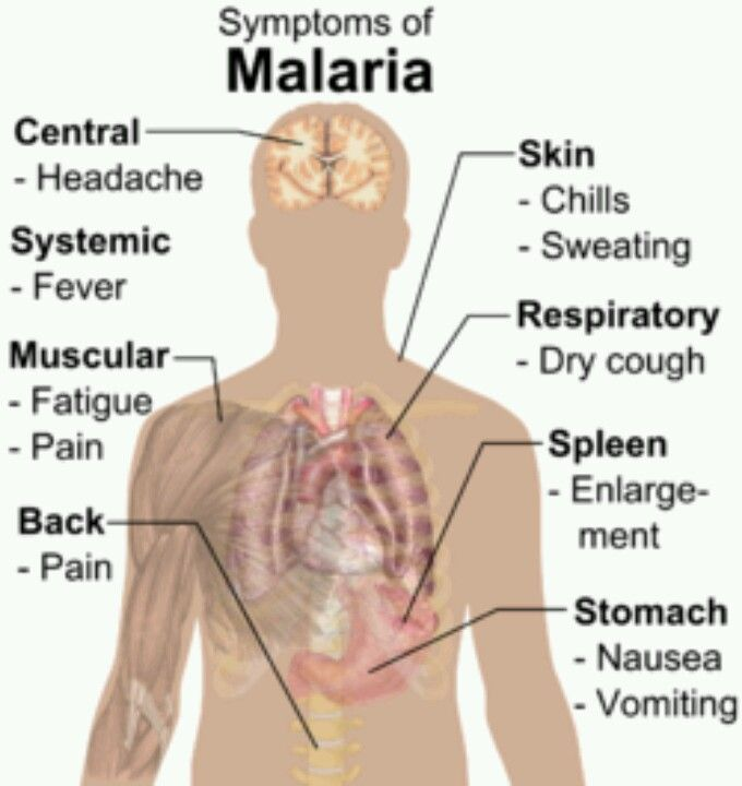 Malaria is a mosquito-borne disease caused by any one of four different blood parasites. The disease is transmitted to people by the Anopheles mosquito. Leading cause of debilitating illness, over 300-500 million cases. Any person residing in or traveling to a country where malaria is prevalent is at risk for contracting the disease. With certain malaria species, dormant forms can be produced which may cause relapses of malaria months to years later.
