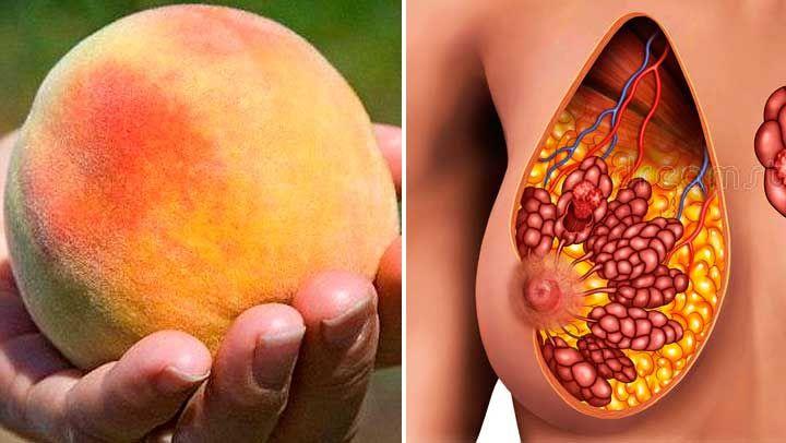 Tenía cáncer de mama y esta fruta fue vital para curarlo antes de fuera tarde. Prevenlo con ellaEsta es la fruta de la mujer, única fruta que tiene grandes propiedades y potencia para destruir el cáncer de mama antes de que sea tarde. Mujer prevenlo con ella y consúmela.