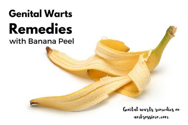 Banana Peel for Genital Warts