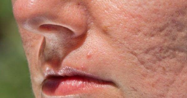 Ανακούφιση και τόνωση σε δέρμα με πληγές, εγκαύματα, χρόνια προβλήματα όπως έλκη διαφόρων αιτιολογιών, κατακλίσεις, αιμορροΐδες, πληγές διαβητικών αλλά επί