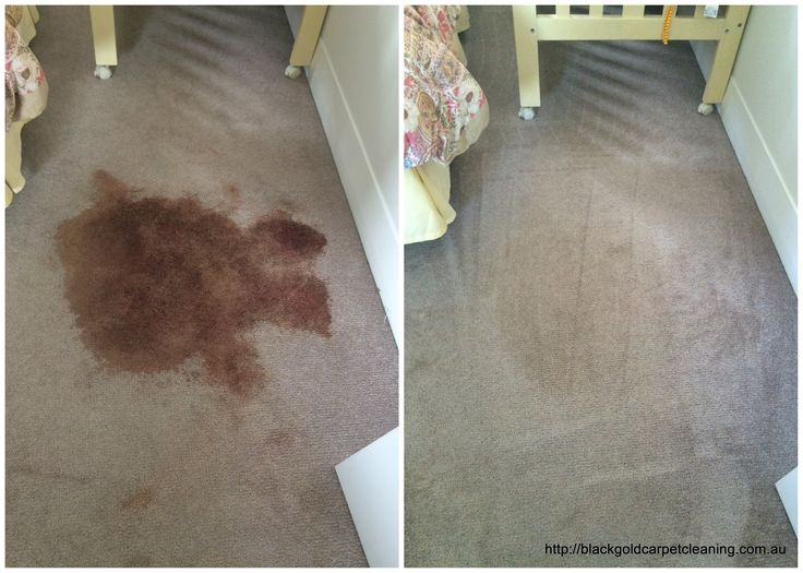 Blood stains can be tricky to remove so usually it is best to call a professional carpet cleaner, especially for dried blood stains.  However if you have a small stain and you want to try to remove it yourself, you can follow these steps.http://blackgoldcarpetcleaning.com.au/blood-stains-out-of-carpet/
