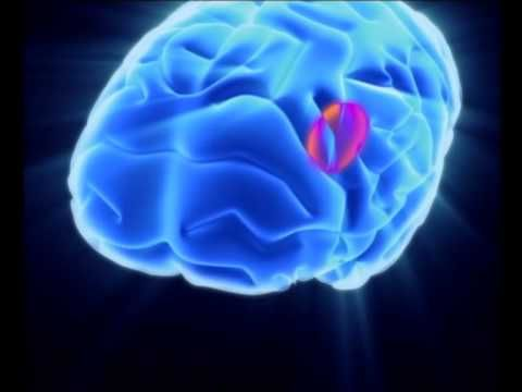 decoding dyslexia video - how the brain process language, words and sounds, v interesting. 1:46