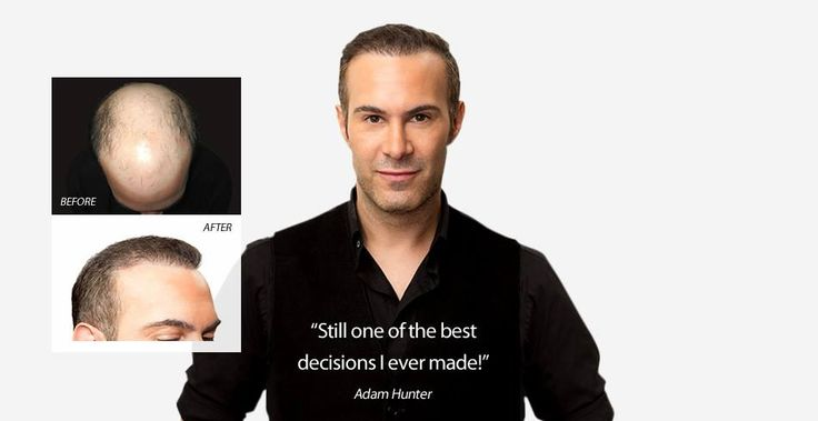 Will a hair transplant look natural? See the results for yourself. View our before and after pictures here - http://www.zieringmedicaldubai.com/hair-transplant/hair-transplant-patient-photos-and-testimonials/