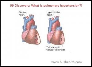 99 Discovery:What Is The Malignant hypertension?