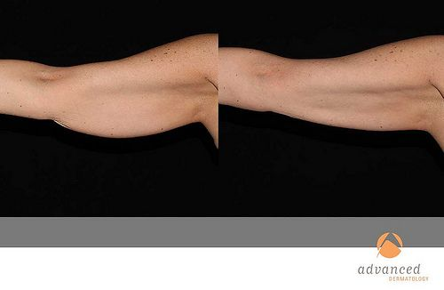 CoolSculpting Arms Before and After CoolSculpting offers a great way to shed excess body fat!