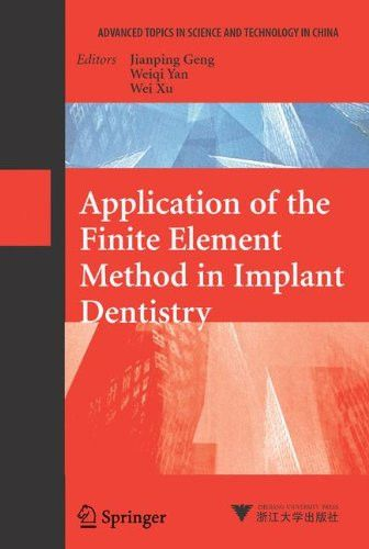 Application of the Finite Element Method in Implant Dentistry (Advanced Topics in Science and Techno