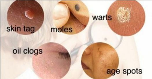 How to Remove Moles, Warts, Blackheads, Skin Tags, and Age Spots Completely Naturally! - Best Health Page