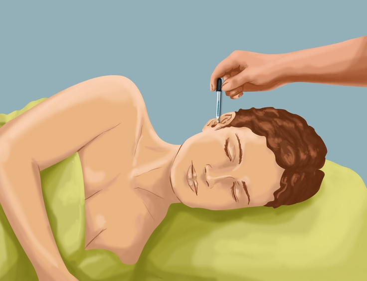 wikiHow to Unclog a Clogged Ear - Ear wax is a common and natural cause of clogged ears. Here are some instructions on how to safely unclog the affected ear.