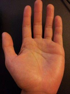 Natural W Get Rid Of Feet Calluses