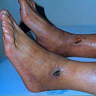 Esclerodermia  La piel de las piernas se observa lisa, brillante, con alteraciones tróficas. Es frecuente que puedan desarrollar ulceras, que son de difícil cicatrización.