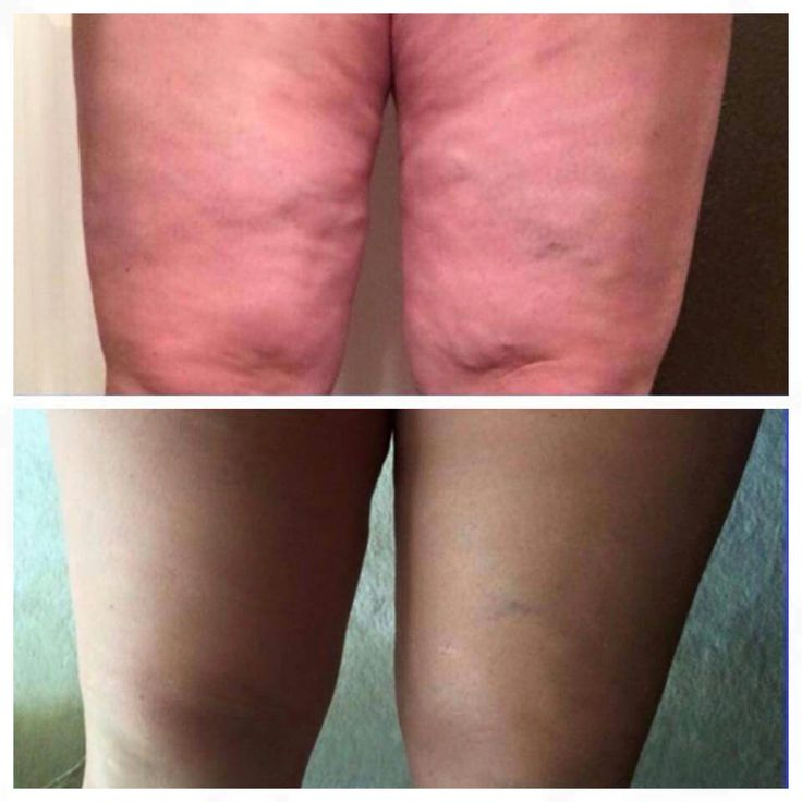 Body Renewal lotion by Jeunesse Global!  This is 3 weeks usage.  Www.kendi73.jeunesseglobal.com for more information