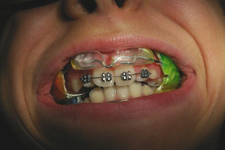 apparecchio funzionale(fraenkel 3).Trattiene la mandibola,con gli scudi in resina stimola la crescita del mascellare.ottimo durante la crescita