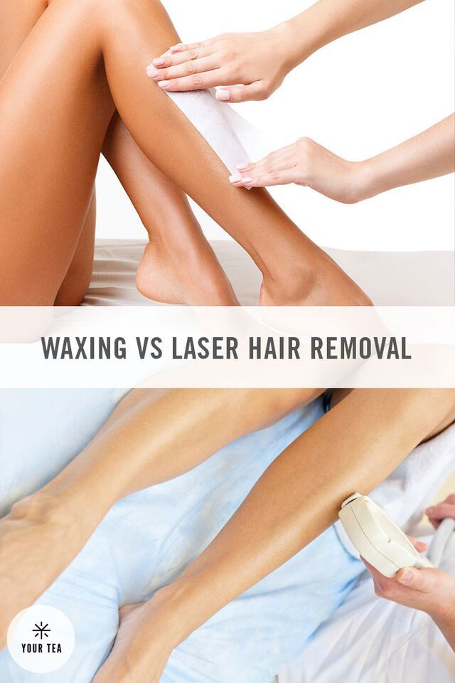 23 best laser hair removal its funny stuff images on pinterest waxing vs laser hair removal to reveal your glowing skin solutioingenieria Choice Image