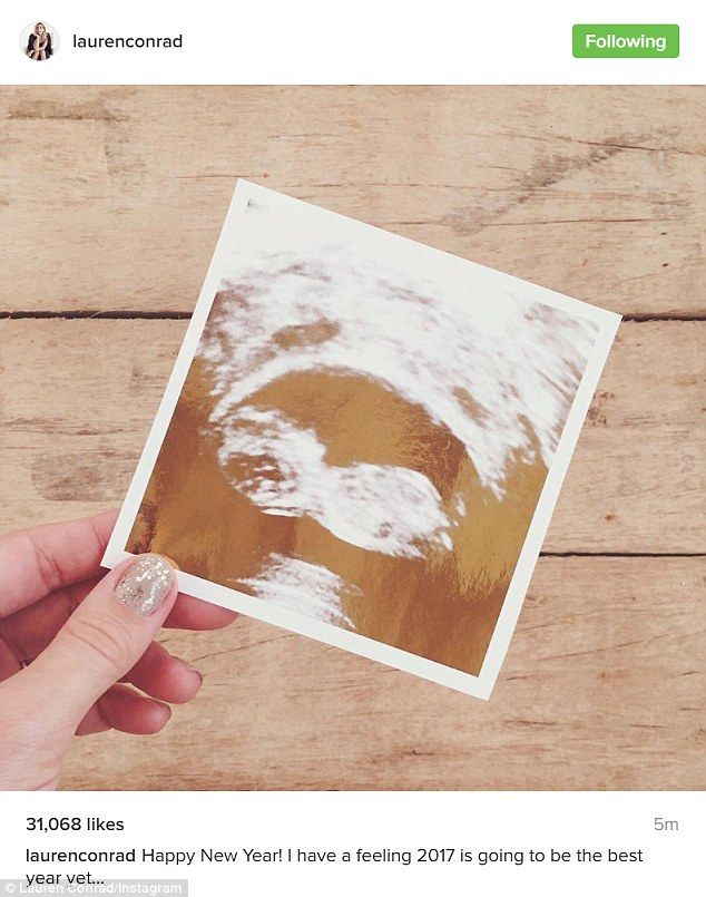 Baby news: Lauren Conrad announced she is pregnant with her first child with this Instagra...