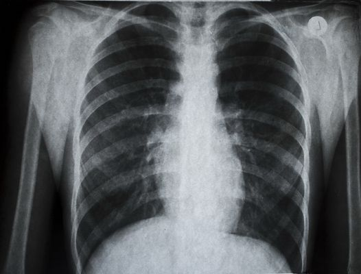 Pictures of Lungs with Congestive Heart Failure X-ray find out more ways to increase height naturally at qnaforum.co.in