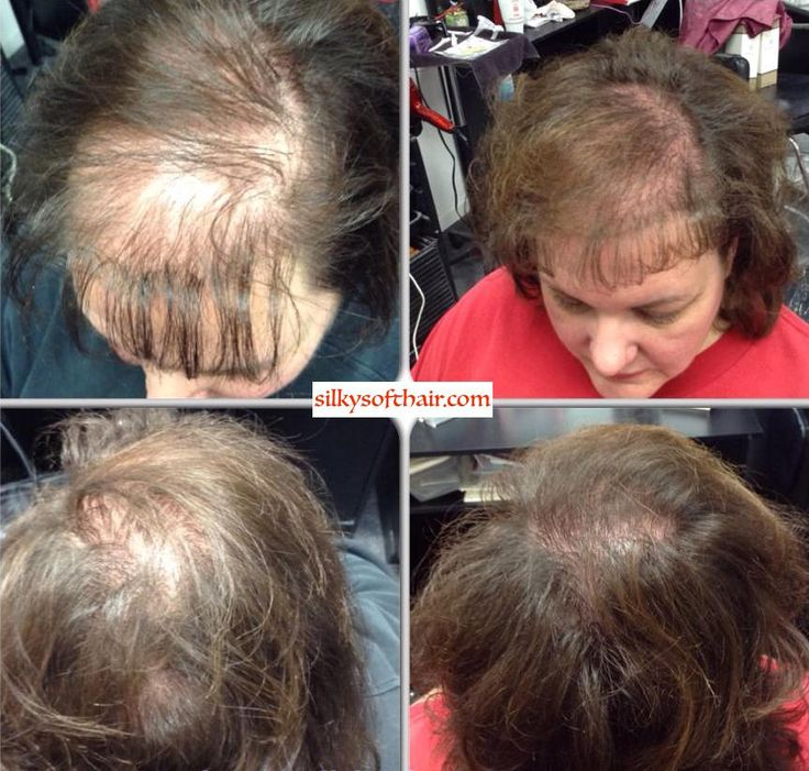 Hair loss is devastating to women. Monat is helping so many women with hair loss due to medical conditions, medicine side effects, stress, hormones, etc. It is so exciting to see someone's face light up who has given up hope. All natural, botanical 30 day Guaranteed!! She is using Monat's Mens Treatment System for hair growth. silkysofthair.com VIP Members save 15% Market Partners Save 30-40%