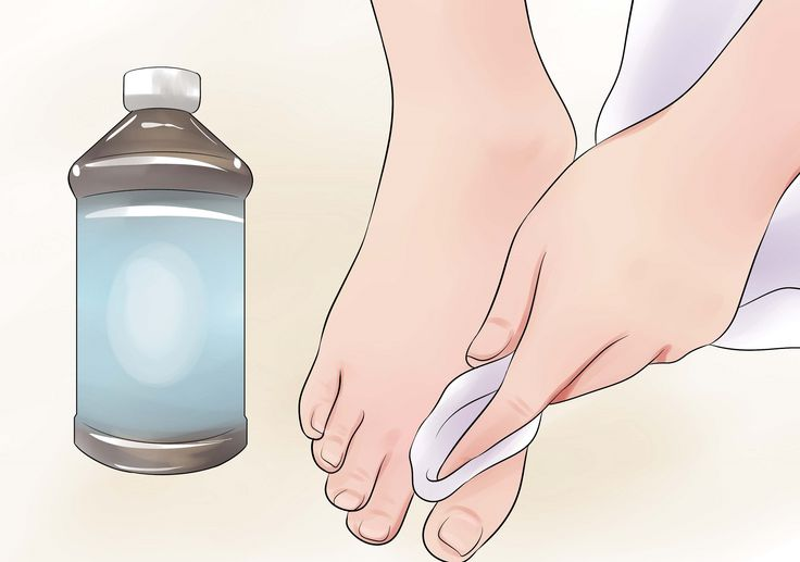 A lábizzadás és a kínos lábszag ilyen könnyen megszüntethető!