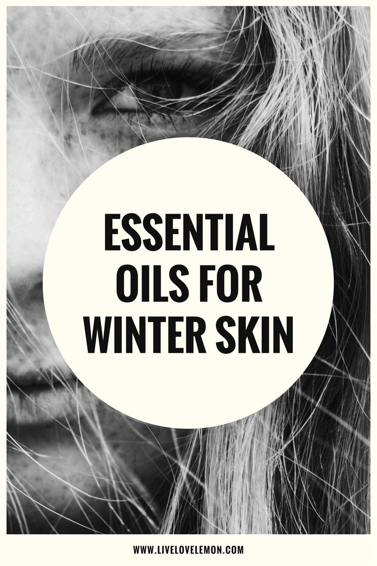 Essential oils for dry, itchy skin