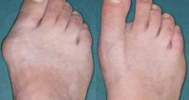 Débarrassez-vous de cette déformation osseuse en 10 jours. Comment se débarrasser d'un oignon de pied?