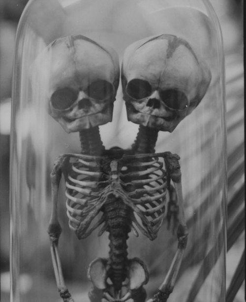 2 Headed baby skeleton - Conjoined Twins                              …