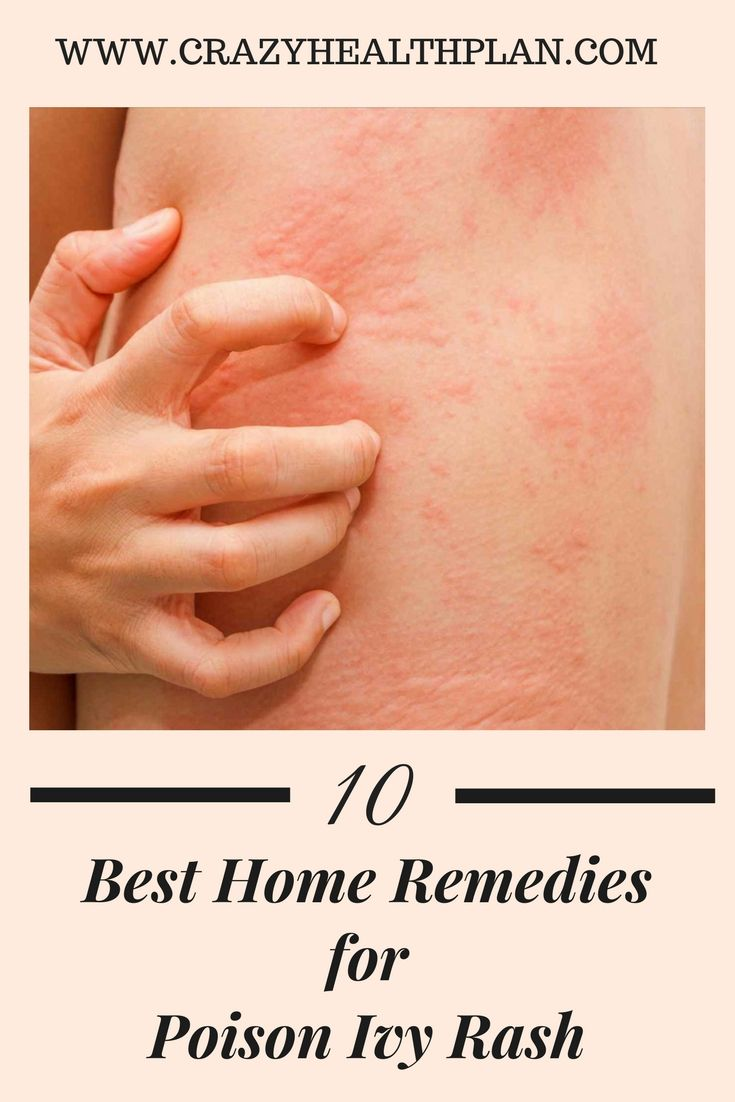 How To Get Rid Of Poison Ivy Rash Top 10 Home Remedies Poison