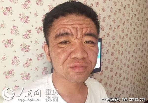 Strange Condition Causes 30-Year-Old Man to Look Decades Older - http://www.odditycentral.com/news/strange-condition-causes-30-year-old-man-to-look-decades-older.html