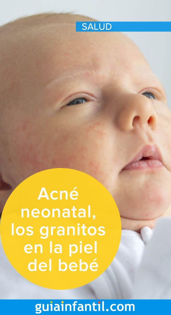 ¿Qué es la infección de la piel del bebé?