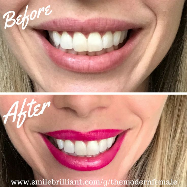 At Home Teeth Whitening Kit for Coffee Addicts! #smilefearlessly #smilebrilliant #teeth #whitening #kit #DIY #themodernfemale