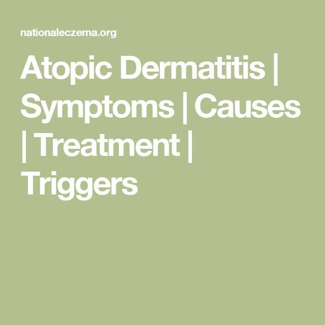 Atopic Dermatitis | Symptoms | Causes | Treatment | Triggers
