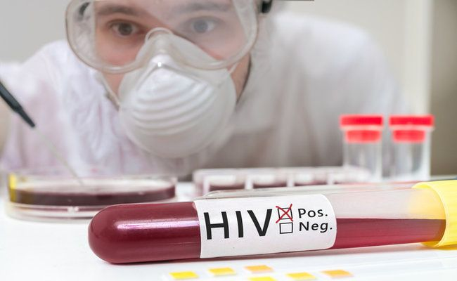 What Are The Early Signs Of HIV Infection | Care2 Healthy Living