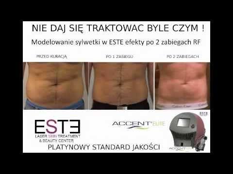 Zabieg wyszczuplania i modelowania sylwetki w salonie ESTE Laser Skin Treatment we Wrocławiu (www.estesalon.pl). Zabieg RF (radiofrekwencji) urządzeniem Accent Elite (Alma Lasers).